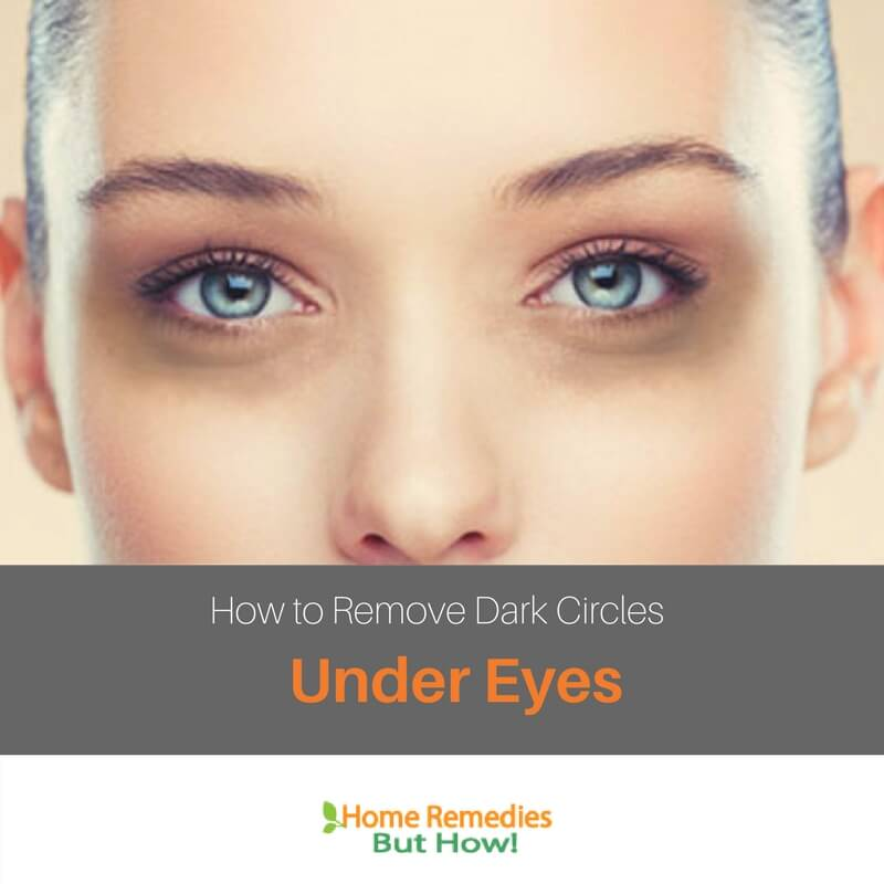 How to Remove Dark Circles Under Eyes (Top 10 Home Remedies)